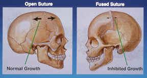 Craniofacial Center | Dallas, Texas